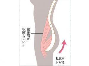 腸腰筋が収縮した図