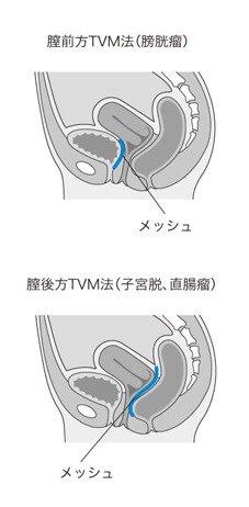 TVM手術のイメージ